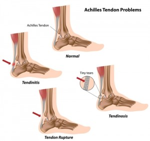 torn Achilles tendon