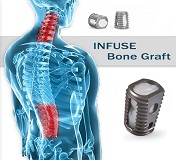 medtronic infuse bone graft cancer