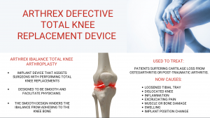 arthrex knee replacements lawsuits